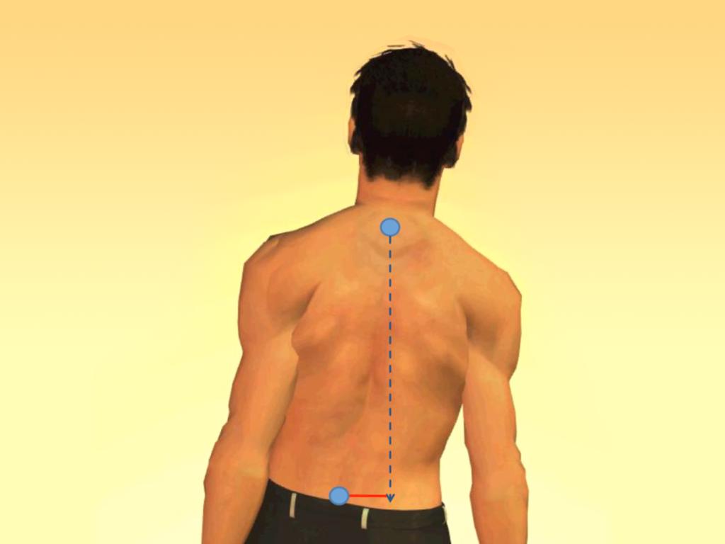 Traitement adulte | Posturetek - Systèmes de remodelage de la