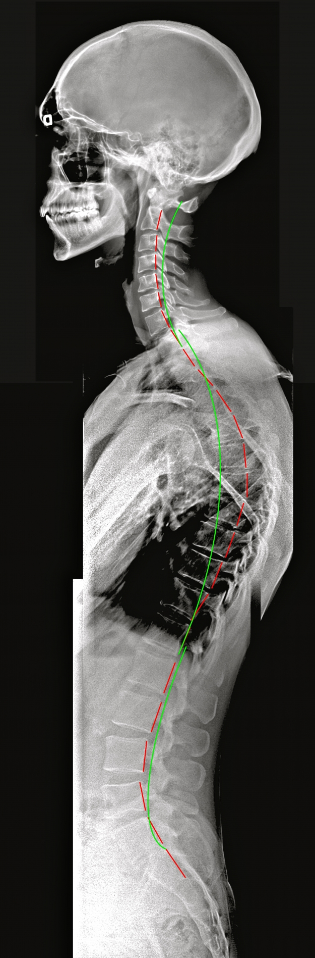 Kyphosis with SpineCor