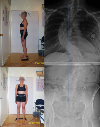 Adolescent idiopathic scoliosis in adults
